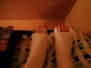 wiggling toes sticking out of two fresh plaster casts
